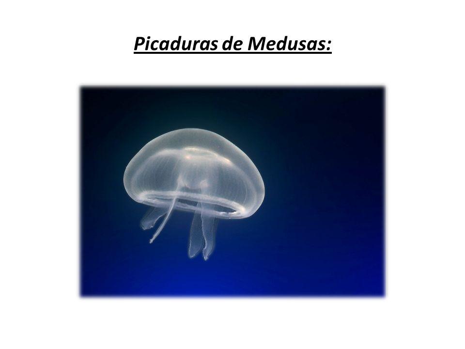 Esta es la forma que presenta una picadura de Medusa.