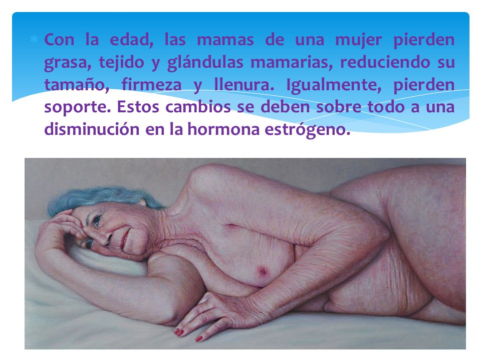 Con la edad, las mamas de una mujer pierden grasa, tejido y glándulas mamarias, reduciendo su tamaño, firmeza y llenura. Igualmente, pierden soporte.
