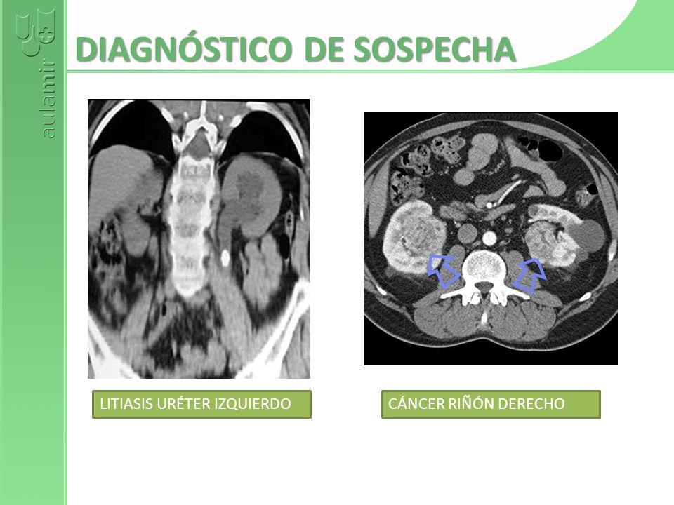 DIAGNÓSTICO DE SOSPECHA LITIASIS URÉTER IZQUIERDOCÁNCER RIÑÓN DERECHO