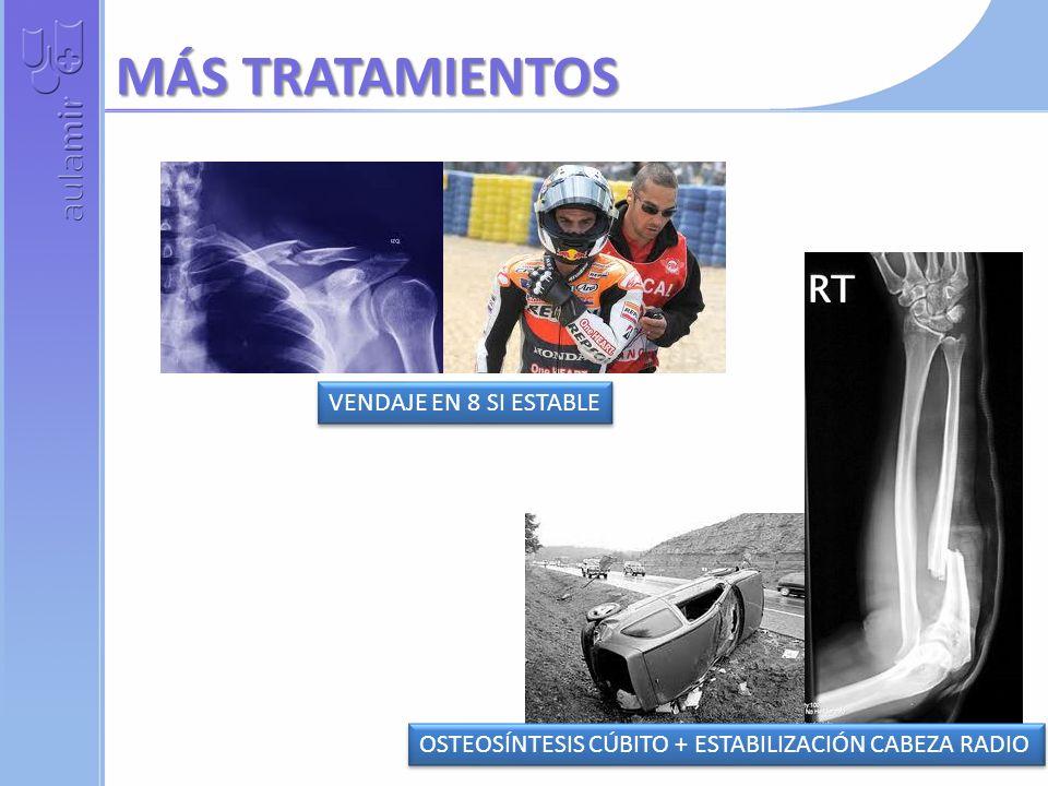 MÁS TRATAMIENTOS VENDAJE EN 8 SI ESTABLE OSTEOSÍNTESIS CÚBITO + ESTABILIZACIÓN CABEZA RADIO