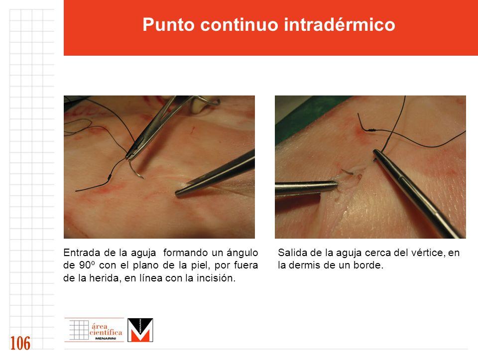 Entrada de la aguja formando un ángulo de 90º con el plano de la piel, por fuera de la herida, en línea con la incisión. Salida de la aguja cerca del
