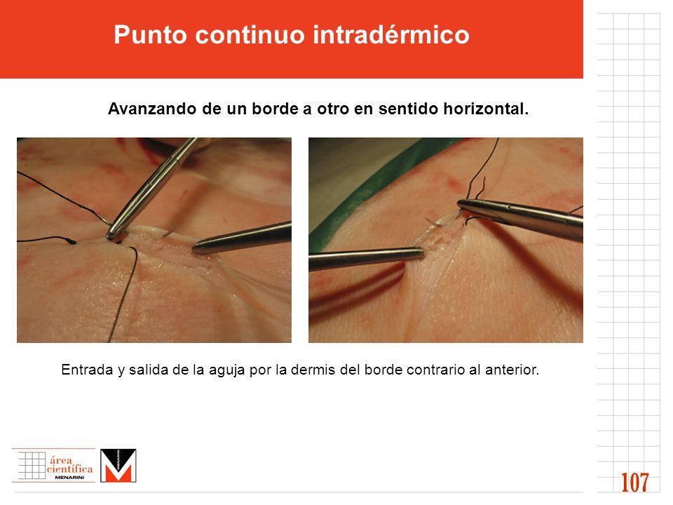 Entrada y salida de la aguja por la dermis del borde contrario al anterior. 107 Punto continuo intradérmico (((( Avanzando de un borde a otro en senti