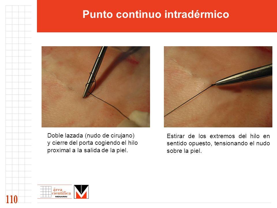 Doble lazada (nudo de cirujano) y cierre del porta cogiendo el hilo proximal a la salida de la piel. Estirar de los extremos del hilo en sentido opues