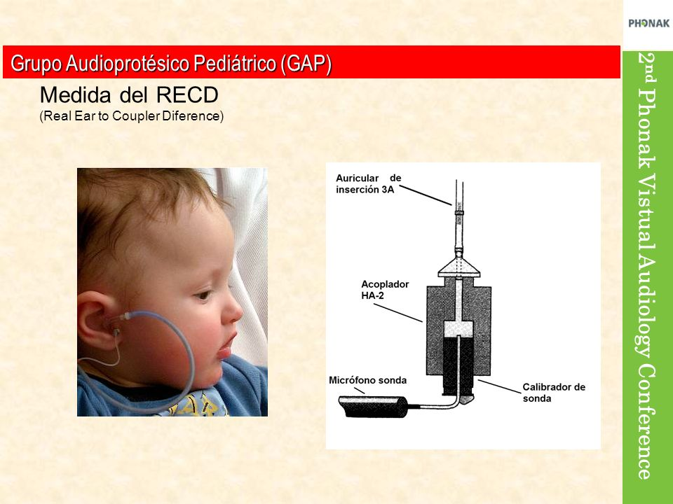Grupo Audioprotésico Pediátrico (GAP) Medida del RECD (Real Ear to Coupler Diference)