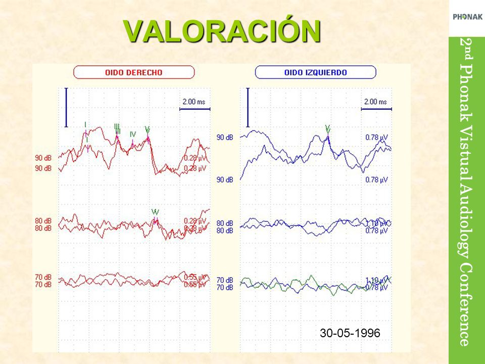 2 nd Phonak Vistual Audiology ConferenceVALORACIÓN 30-05-1996