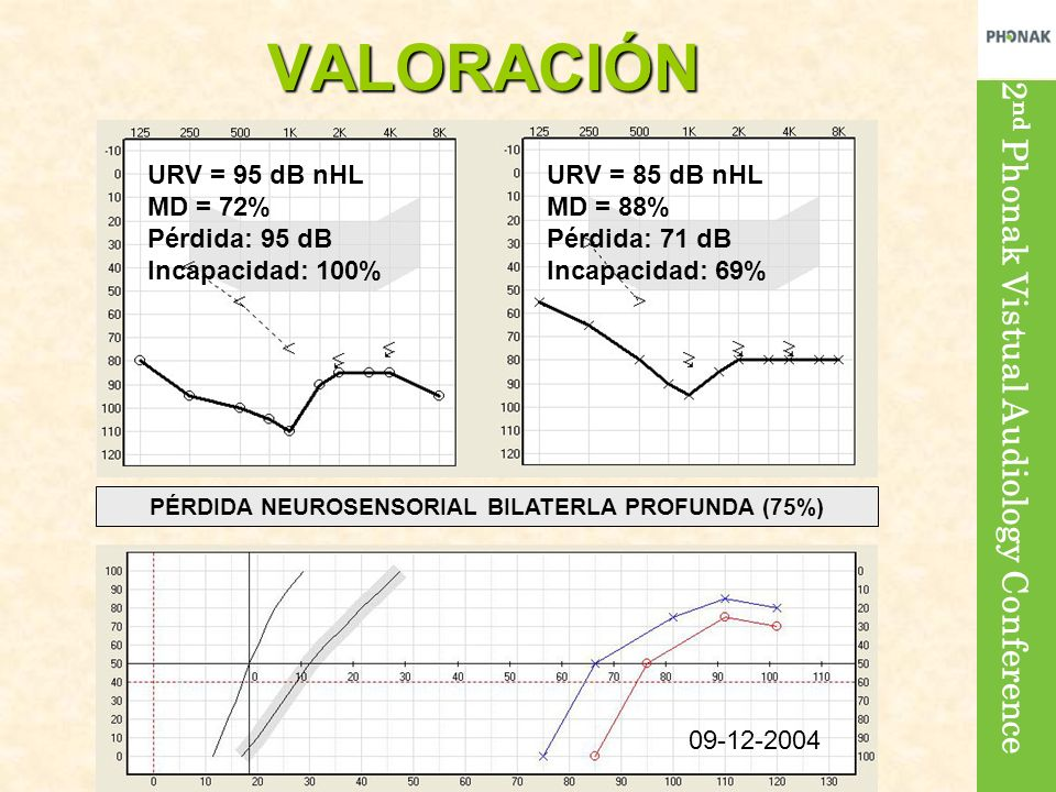 2 nd Phonak Vistual Audiology Conference URV = 95 dB nHL MD = 72% Pérdida: 95 dB Incapacidad: 100% URV = 85 dB nHL MD = 88% Pérdida: 71 dB Incapacidad