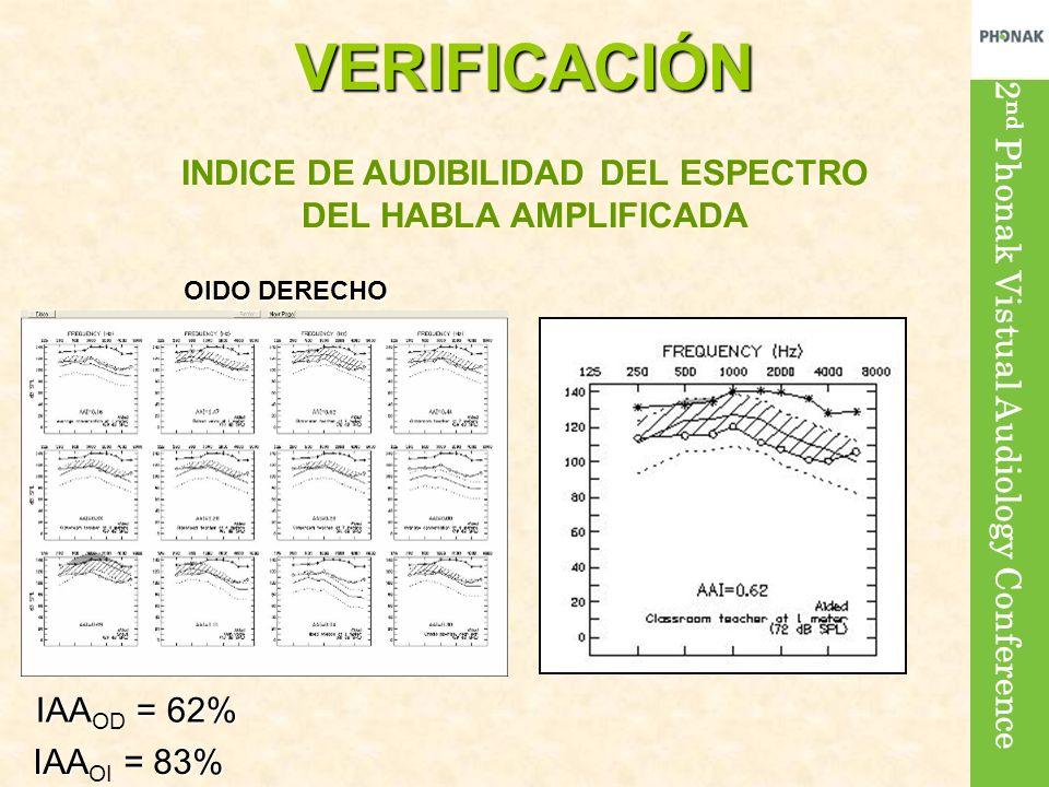 2 nd Phonak Vistual Audiology ConferenceVERIFICACIÓN IAA = 62% IAA OD = 62% IAA = 83% IAA OI = 83% INDICE DE AUDIBILIDAD DEL ESPECTRO DEL HABLA AMPLIFICADA OIDO DERECHO