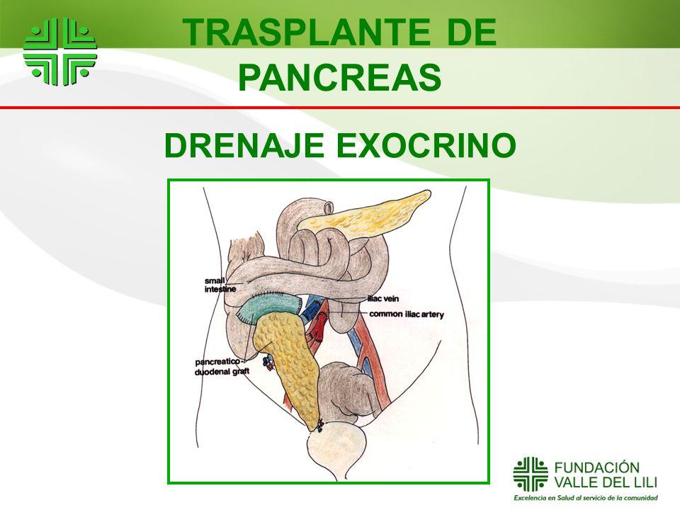 DRENAJE EXOCRINO TRASPLANTE DE PANCREAS