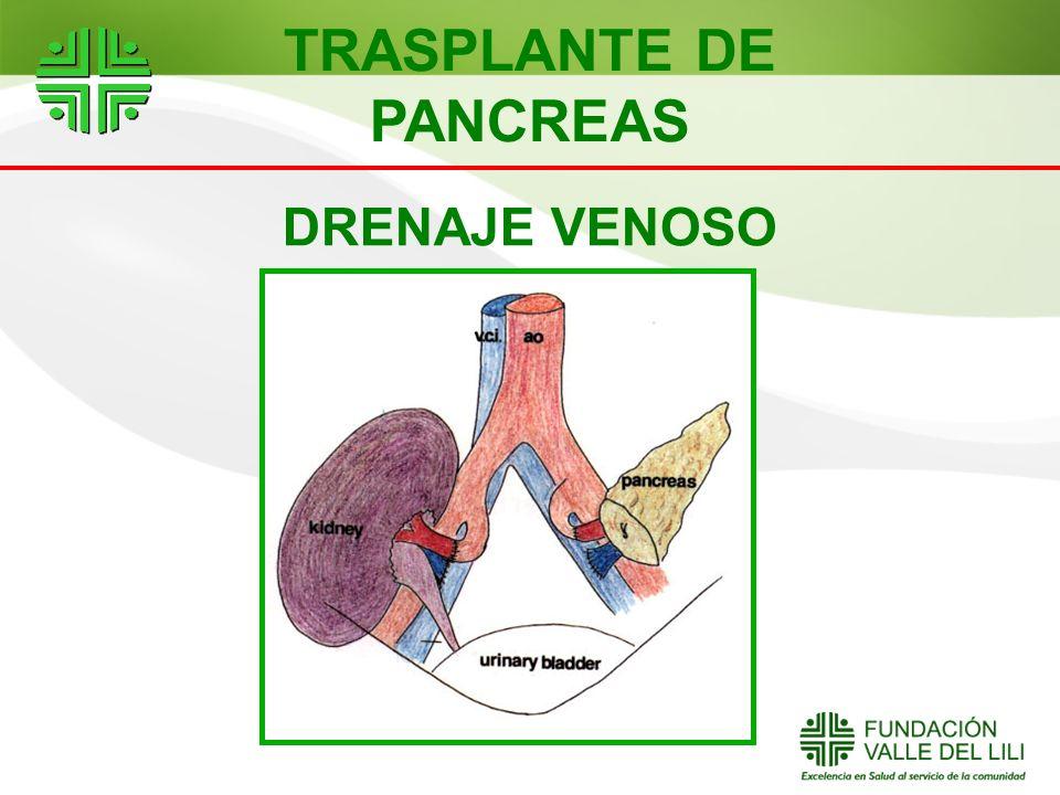 DRENAJE VENOSO TRASPLANTE DE PANCREAS