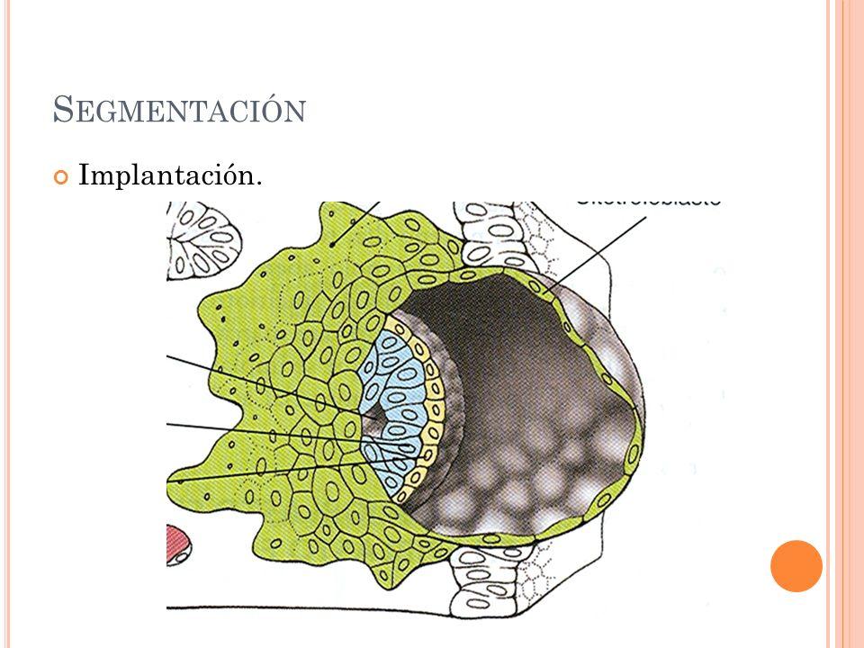 S EGMENTACIÓN Implantación.