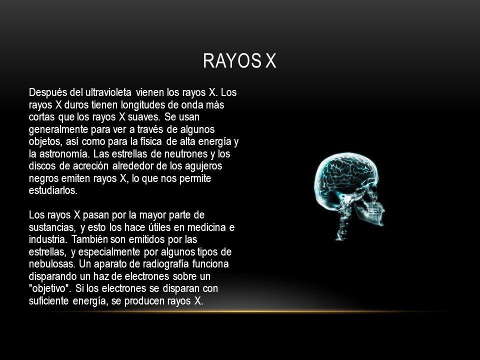Después del ultravioleta vienen los rayos X. Los rayos X duros tienen longitudes de onda más cortas que los rayos X suaves. Se usan generalmente para