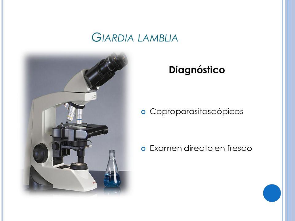 G IARDIA LAMBLIA Diagnóstico Coproparasitoscópicos Examen directo en fresco