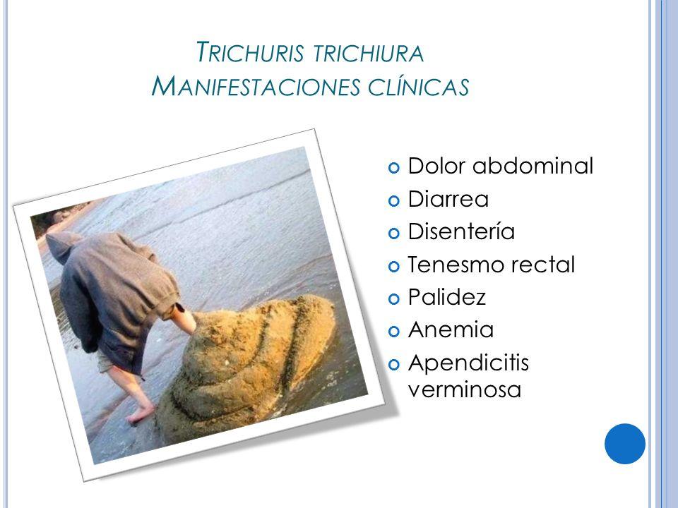 T RICHURIS TRICHIURA M ANIFESTACIONES CLÍNICAS Dolor abdominal Diarrea Disentería Tenesmo rectal Palidez Anemia Apendicitis verminosa