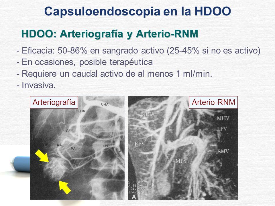 HDOO: Arteriografía y Arterio-RNM - Eficacia: 50-86% en sangrado activo (25-45% si no es activo) - En ocasiones, posible terapéutica - Requiere un cau