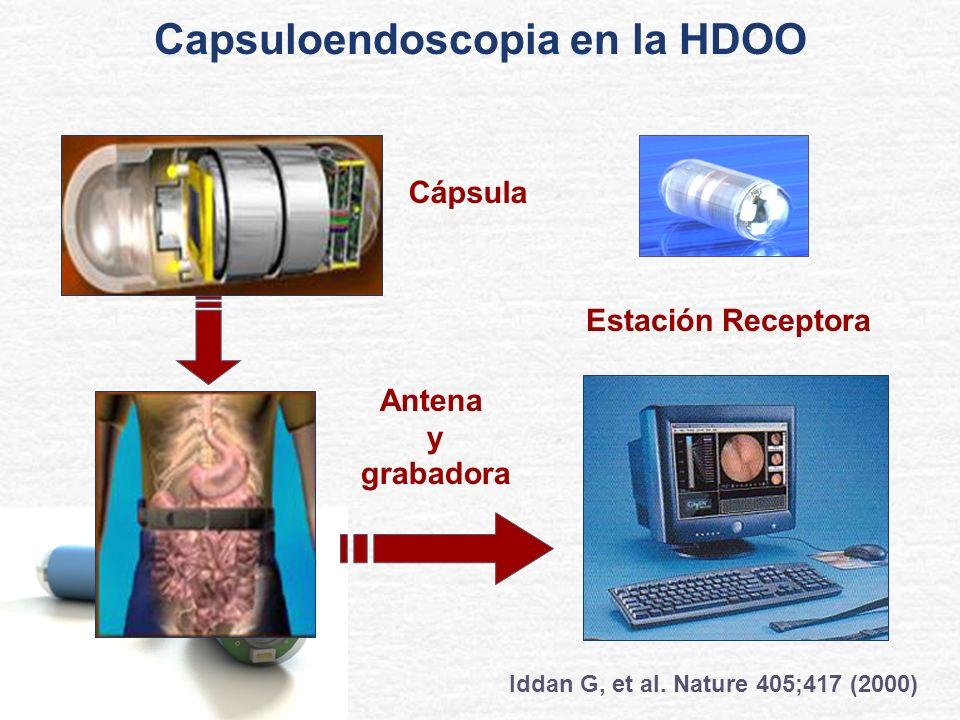 Cápsula Estación Receptora Antena y grabadora Iddan G, et al. Nature 405;417 (2000) Capsuloendoscopia en la HDOO