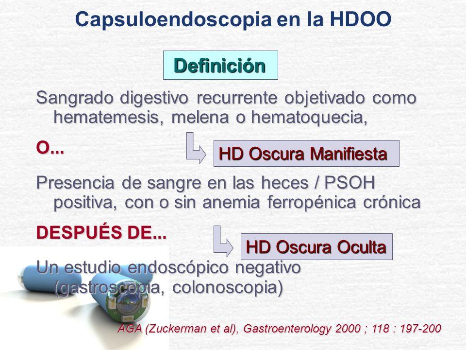 Diagnósticos principales en pacientes sometidos a capsuloendoscopia por HDOO: n Malformación vascular Enfermedad de Crohn Tumores intestinales Úlcera péptica Enteritis post-RT 22 4 3 4 1 Diagnóstico Capsuloendoscopia en la HDOO