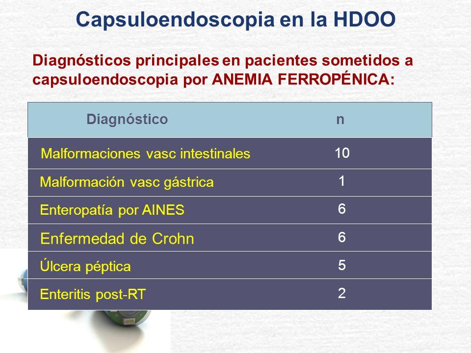Diagnósticos principales en pacientes sometidos a capsuloendoscopia por ANEMIA FERROPÉNICA: n Malformaciones vasc intestinales Malformación vasc gástr