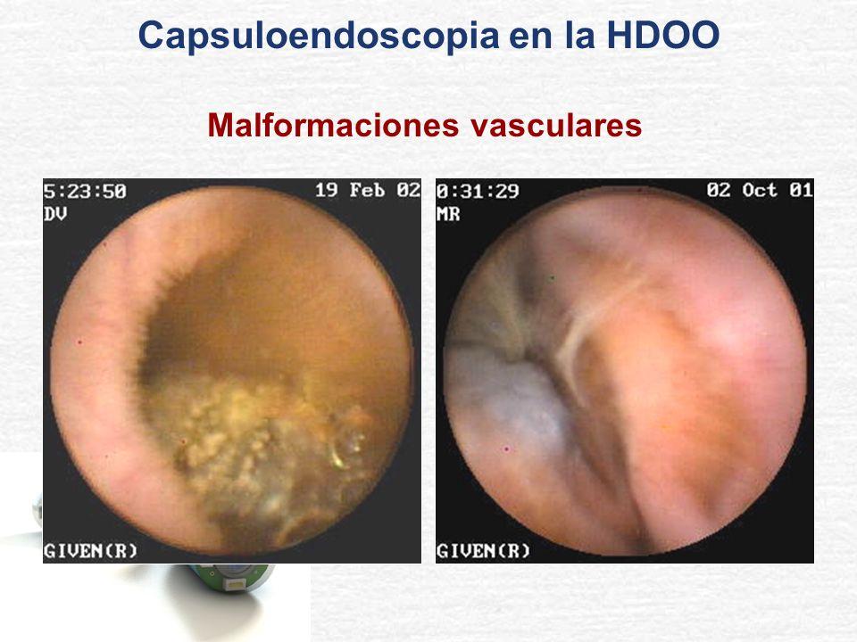 Malformaciones vasculares Capsuloendoscopia en la HDOO
