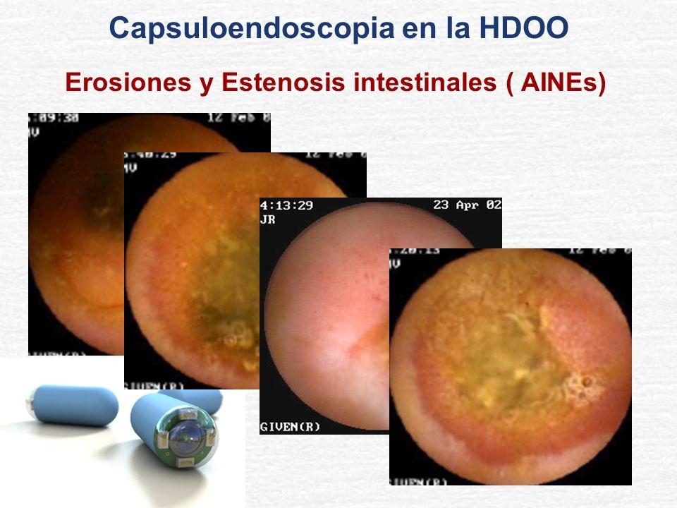 Erosiones y Estenosis intestinales ( AINEs) Capsuloendoscopia en la HDOO