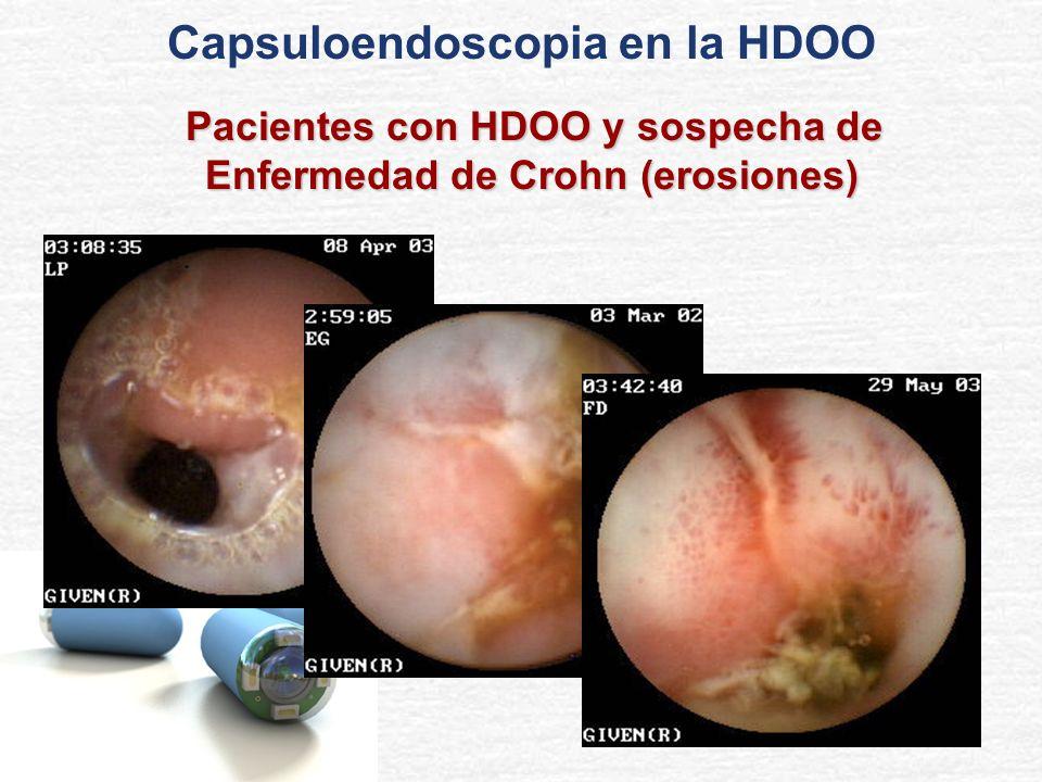 Capsuloendoscopia en la HDOO Pacientes con HDOO y sospecha de Enfermedad de Crohn (erosiones) Pacientes con HDOO y sospecha de Enfermedad de Crohn (er