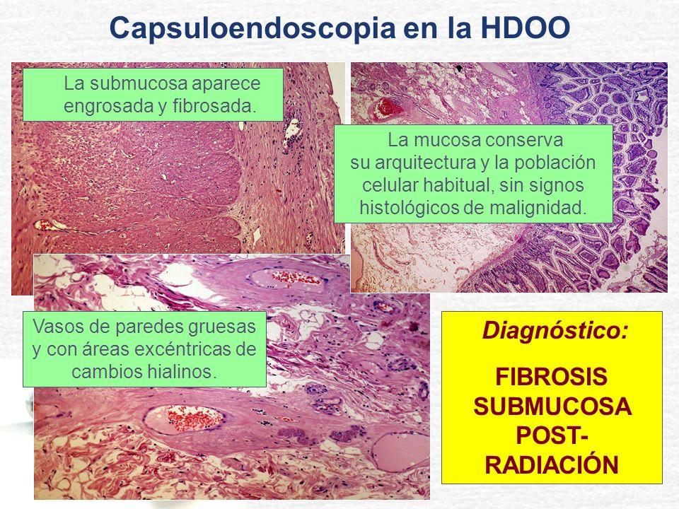 La mucosa conserva su arquitectura y la población celular habitual, sin signos histológicos de malignidad. Vasos de paredes gruesas y con áreas excént
