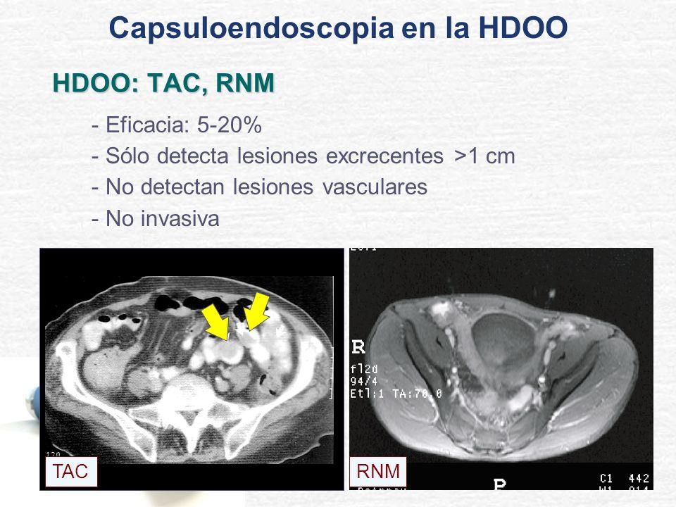 HDOO: TAC, RNM - Eficacia: 5-20% - Sólo detecta lesiones excrecentes >1 cm - No detectan lesiones vasculares - No invasiva TACRNM Capsuloendoscopia en