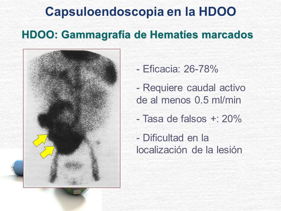 HDOO: Gammagrafía de Hematíes marcados - Eficacia: 26-78% - Requiere caudal activo de al menos 0.5 ml/min - Tasa de falsos +: 20% - Dificultad en la l