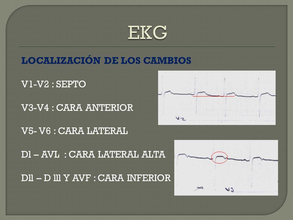 LOCALIZACIÓN DE LOS CAMBIOS V1-V2 : SEPTO V3-V4 : CARA ANTERIOR V5- V6 : CARA LATERAL Dl – AVL : CARA LATERAL ALTA Dll – D lll Y AVF : CARA INFERIOR