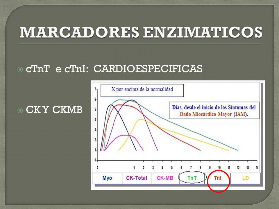 cTnT e cTnI: CARDIOESPECIFICAS CK Y CKMB