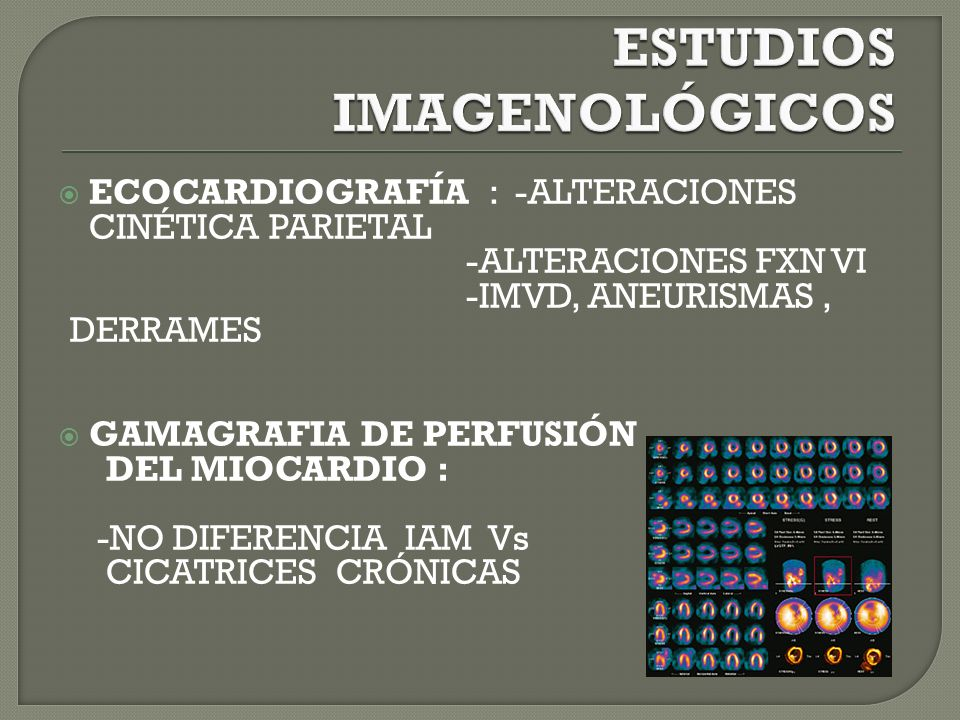 ECOCARDIOGRAFÍA : -ALTERACIONES CINÉTICA PARIETAL -ALTERACIONES FXN VI -IMVD, ANEURISMAS, DERRAMES GAMAGRAFIA DE PERFUSIÓN DEL MIOCARDIO : -NO DIFERENCIA IAM Vs CICATRICES CRÓNICAS