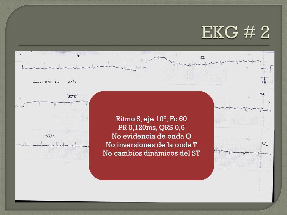 Ritmo S, eje 10°, Fc 60 PR 0,120ms, QRS 0,6 No evidencia de onda Q No inversiones de la onda T No cambios dinámicos del ST