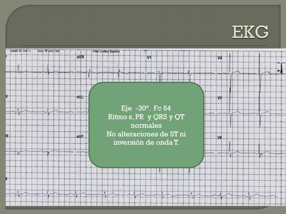 Eje -30°. Fc 54 Ritmo s, PR y QRS y QT normales No alteraciones de ST ni inversión de onda T.