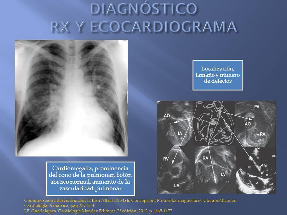 Cardiomegalia, prominencia del cono de la pulmonar, botón aórtico normal, aumento de la vascularidad pulmonar Localización, tamaño y número de defecto
