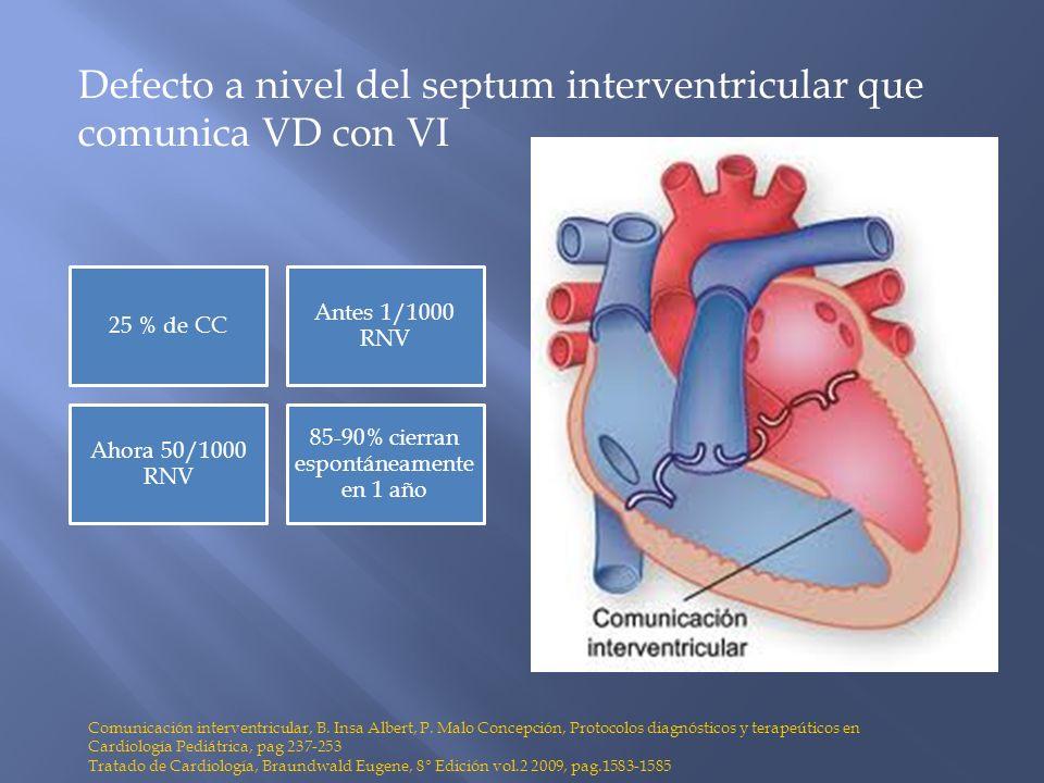 Defecto a nivel del septum interventricular que comunica VD con VI Comunicación interventricular, B. Insa Albert, P. Malo Concepción, Protocolos diagn