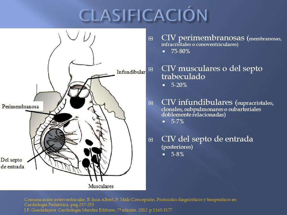 CIV perimembranosas ( membranosas, infracristales o conoventriculares) 75-80% CIV musculares o del septo trabeculado 5-20% CIV infundibulares ( suprac