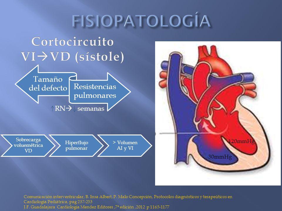 Tamaño del defecto Resistencias pulmonares Comunicación interventricular, B. Insa Albert, P. Malo Concepción, Protocolos diagnósticos y terapeúticos e