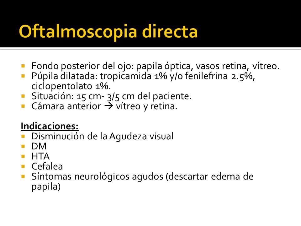 Fondo posterior del ojo: papila óptica, vasos retina, vítreo. Púpila dilatada: tropicamida 1% y/o fenilefrina 2.5%, ciclopentolato 1%. Situación: 15 c