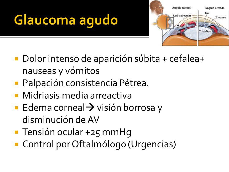 Dolor intenso de aparición súbita + cefalea+ nauseas y vómitos Palpación consistencia Pétrea. Midriasis media arreactiva Edema corneal visión borrosa