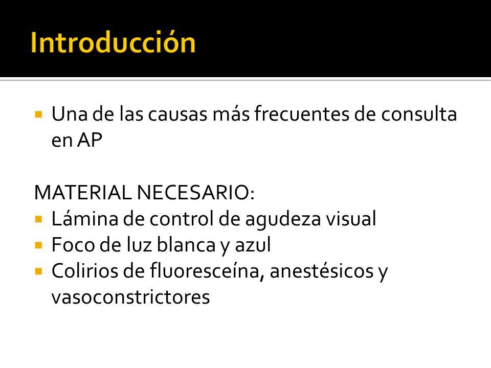 Una de las causas más frecuentes de consulta en AP MATERIAL NECESARIO: Lámina de control de agudeza visual Foco de luz blanca y azul Colirios de fluor