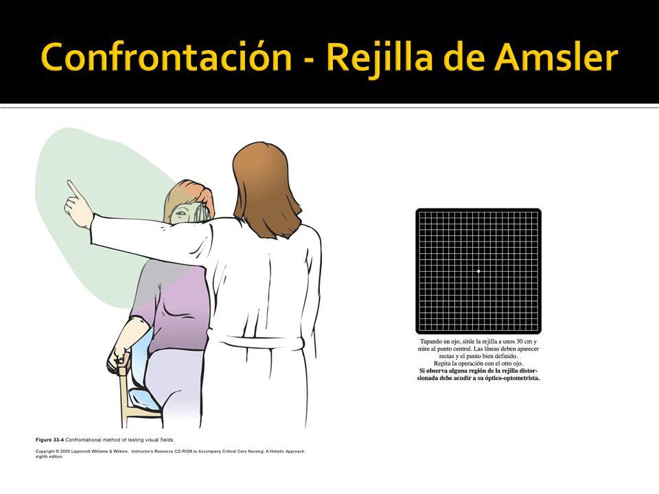 Inflamación corneal.