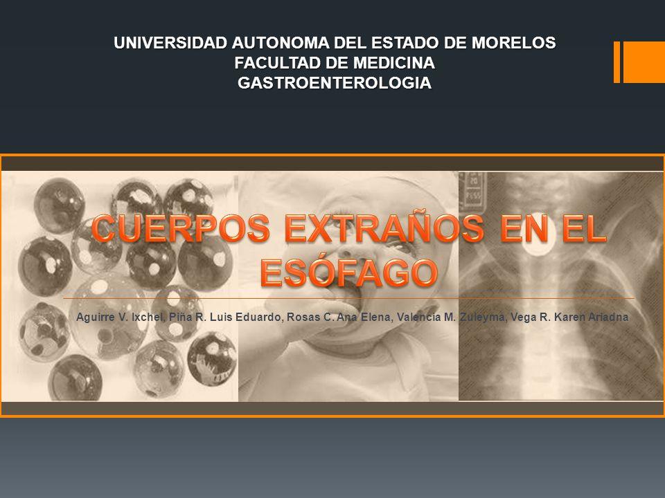 UNIVERSIDAD AUTONOMA DEL ESTADO DE MORELOS FACULTAD DE MEDICINA GASTROENTEROLOGIA Aguirre V. Ixchel, Piña R. Luis Eduardo, Rosas C. Ana Elena, Valenci