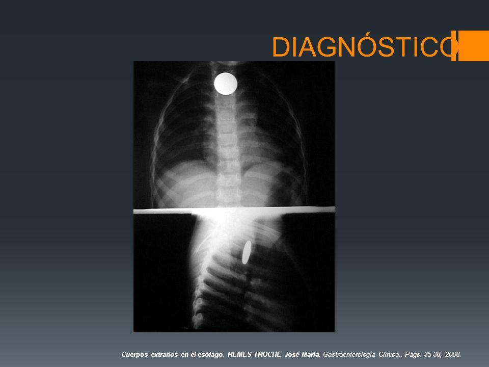 DIAGNÓSTICO Cuerpos extraños en el esófago. REMES TROCHE José María. Gastroenterología Clínica.. Págs. 35-38, 2008.