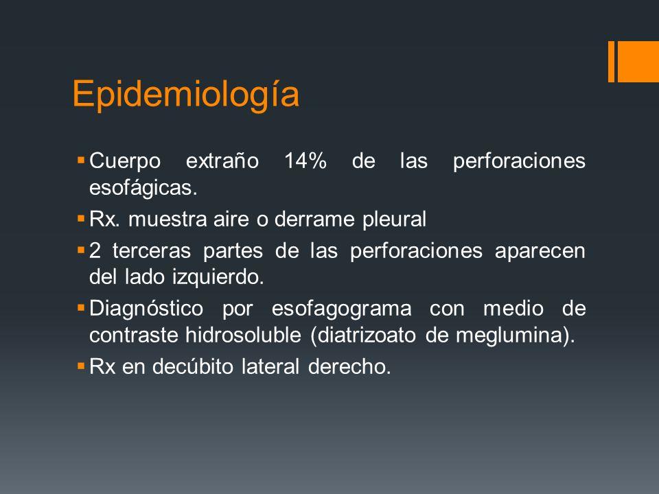 Epidemiología Cuerpo extraño 14% de las perforaciones esofágicas. Rx. muestra aire o derrame pleural 2 terceras partes de las perforaciones aparecen d