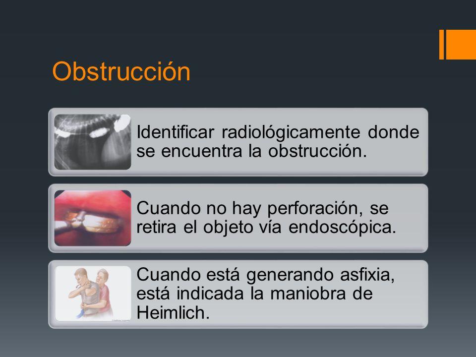 Obstrucción Identificar radiológicamente donde se encuentra la obstrucción. Cuando no hay perforación, se retira el objeto vía endoscópica. Cuando est