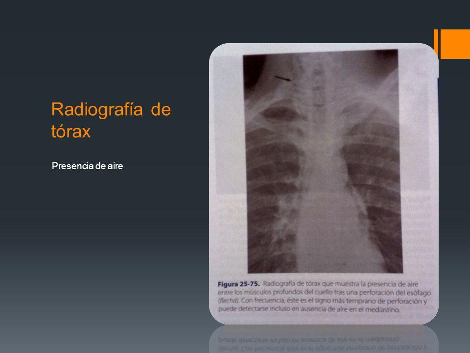 Radiografía de tórax Presencia de aire