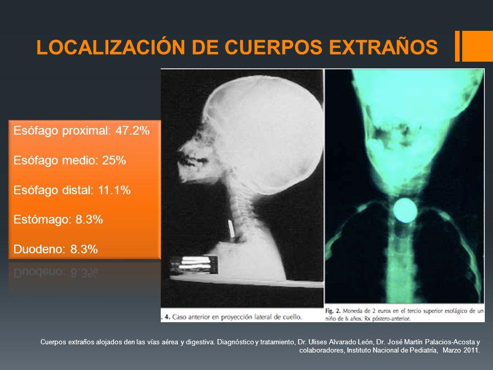 LOCALIZACIÓN DE CUERPOS EXTRAÑOS Cuerpos extraños alojados den las vías aérea y digestiva. Diagnóstico y tratamiento, Dr. Ulises Alvarado León, Dr. Jo