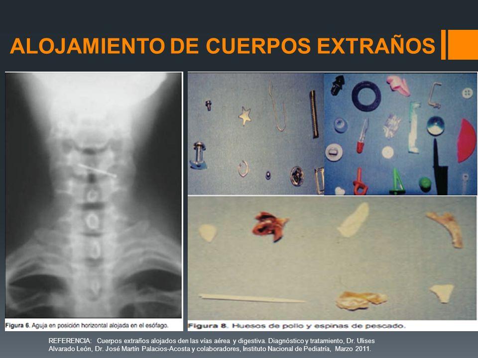 ALOJAMIENTO DE CUERPOS EXTRAÑOS REFERENCIA: Cuerpos extraños alojados den las vías aérea y digestiva. Diagnóstico y tratamiento, Dr. Ulises Alvarado L