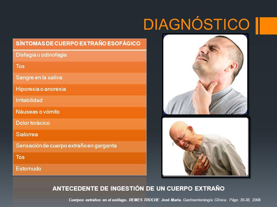 DIAGNÓSTICO SÍNTOMAS DE CUERPO EXTRAÑO ESOFÁGICO Disfagia u odinofagia Tos Sangre en la saliva Hiporexia o anorexia Irritabilidad Náuseas o vómito Dol
