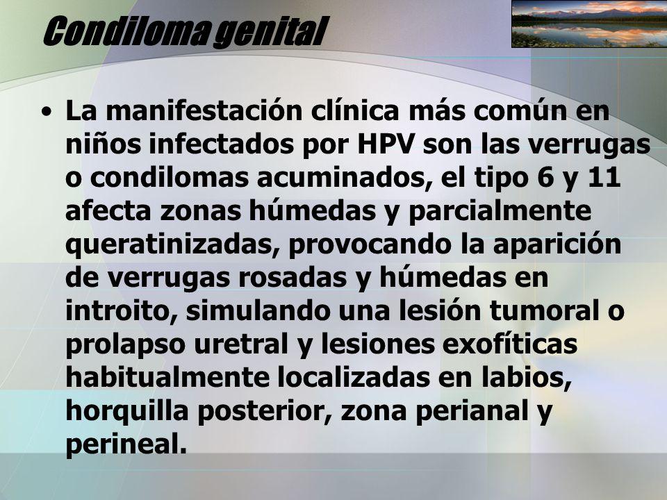 Condiloma genital La manifestación clínica más común en niños infectados por HPV son las verrugas o condilomas acuminados, el tipo 6 y 11 afecta zonas