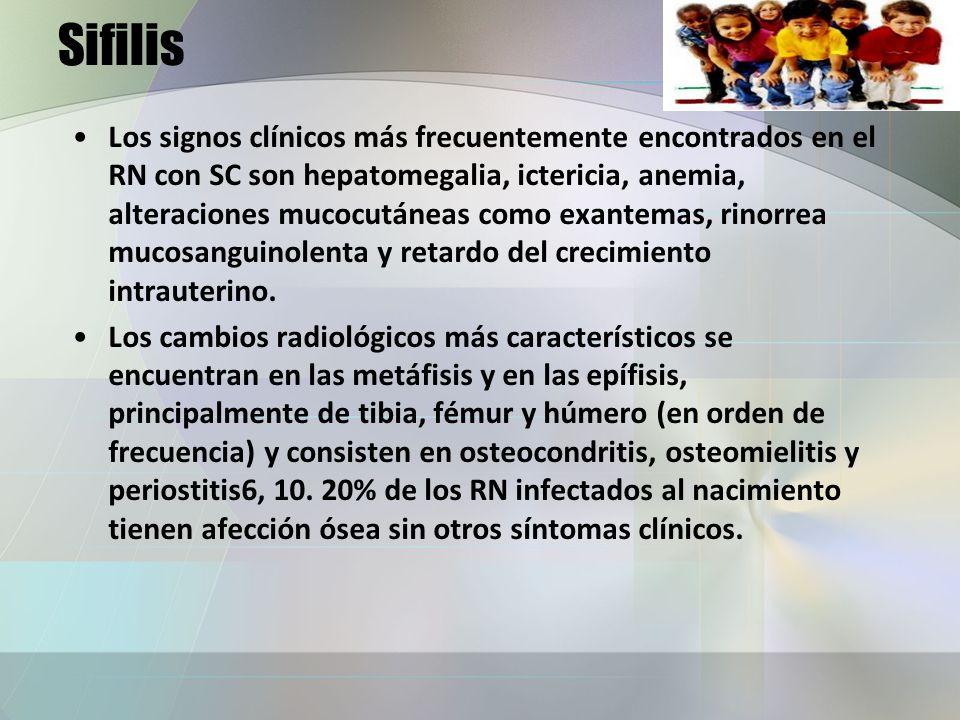 Sifilis Los signos clínicos más frecuentemente encontrados en el RN con SC son hepatomegalia, ictericia, anemia, alteraciones mucocutáneas como exante